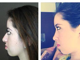 Cirugía facial-521717