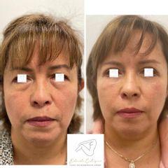 Blefaroplastia - Dr. Eduardo Cartagena