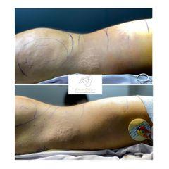 Liposucción - Dr. Eduardo Cartagena