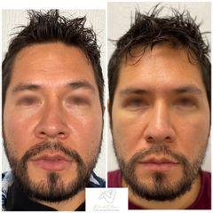 Eliminación de ojeras - Dr. Eduardo Cartagena