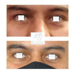 Cirugía de cicatrices - Dr. Eduardo Cartagena