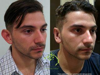 Cirugía Plástica de orejas prominentes