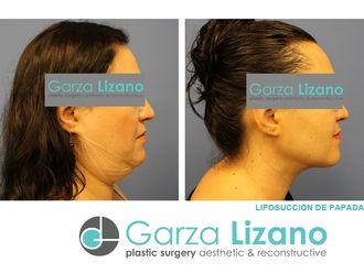 Cirugía de papada-627399