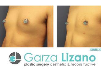 Cirugía ginecomastia - 627404