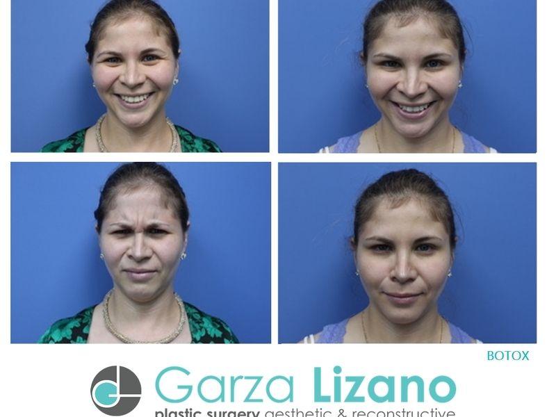 Garza Lizano Plastic Surgery