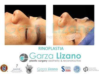 Rinoplastia-641952