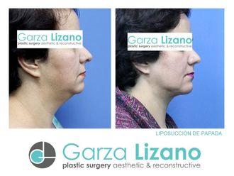 Cirugía de papada - 644284