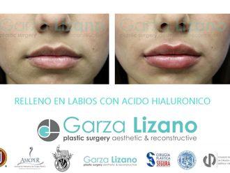 Aumento de labios-648674