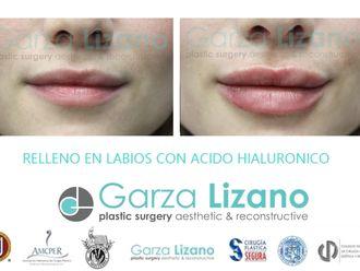 Aumento de labios-650050