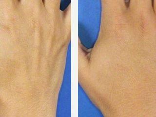 Antes y después de relleno en manos