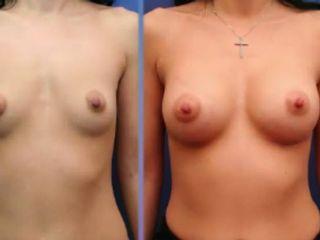 Antes y despues de aumento de senos