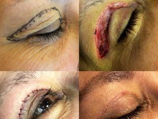 Cirugía parpados
