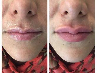 Aumento de labios-638756