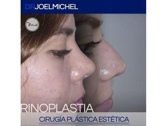 Rinoplastia-699708