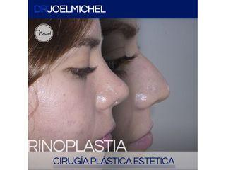 Rinoplastia - Dr. Joel Michel Dueñas