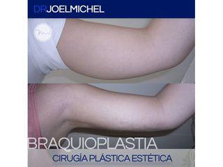 Braquioplastia - Dr. Joel Michel Dueñas