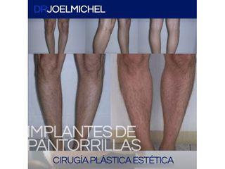 Aumento de pantorrillas - Dr. Joel Michel Dueñas