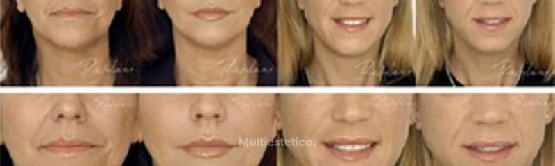 Antes y despues de rellenos faciales