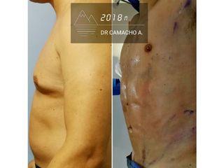 Liposucción con Marcaje Abdominal de alta definición - Dr. Rodrigo Camacho Acosta