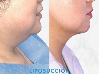 Cirugía de papada-660444