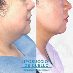 Liposucción de cuello - Dr. Rodrigo Camacho Acosta