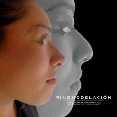Rinomodelación (aplicación de acido hialuronico en nariz) - Dr. Rodrigo Camacho Acosta