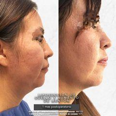 Liposucción de cuello y aumento de mentón