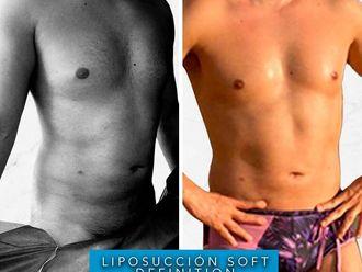 Liposucción-661136