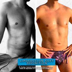 Liposucción soft definition