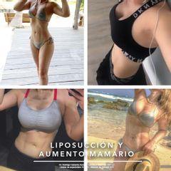 Liposucción y aumento mamario - Dr. Rodrigo Camacho Acosta