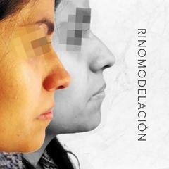 Rinomodelación - Dr. Rodrigo Camacho Acosta