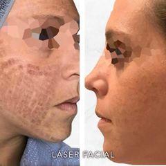 Laser facial  - Dr. Rodrigo Camacho Acosta