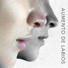 Aumento de labios - Dr. Rodrigo Camacho Acosta