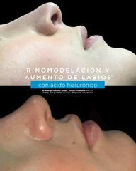Rinomodelacion y aumento de labios