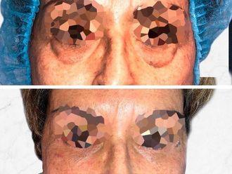 Blefaroplastia-661153