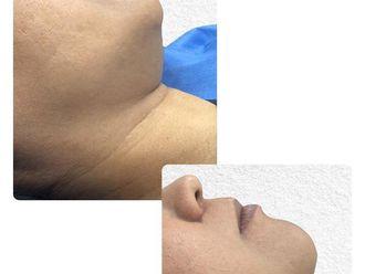 Cirugía de papada-661158