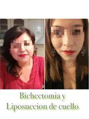 Liposucción de cuello + Bichectomia - Dr. Rodrigo Camacho Acosta