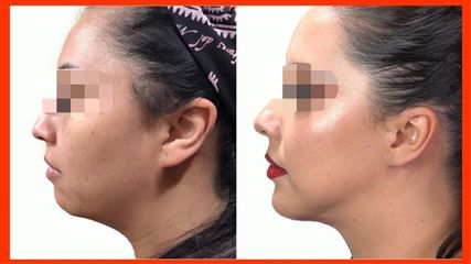 Liposucción de cuello + Aumento de mentón - Dr. Rodrigo Camacho Acosta