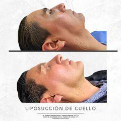 LIPOSUCCION DE CUELLO -Dr. Rodrigo Camacho Acosta