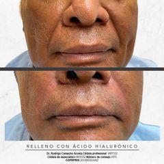 RELLENO DE SURCOS NASOGENIANOS CON ACIDO HIALURONICO- Dr. Rodrigo Camacho Acosta