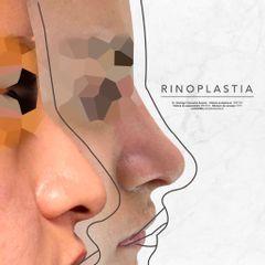 Rinoplastia - Dr. Rodrigo Camacho Acosta