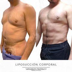 Liposucción - Dr. Rodrigo Camacho Acosta