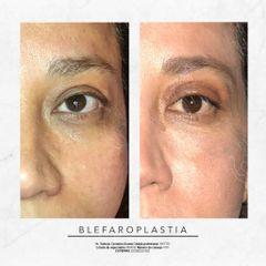 Blefaroplastia - Dr. Rodrigo Camacho Acosta