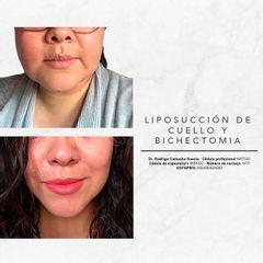 Bichectomia y lipopapada Dr. Rodrigo Camacho Acosta