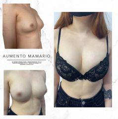 Aumento de busto - Dr. Rodrigo Camacho Acosta