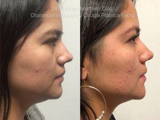 Cirugía de papada-630222