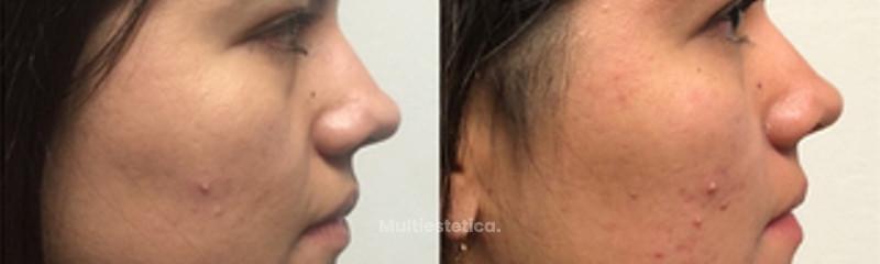 Bichectomia y liposucción de cuello