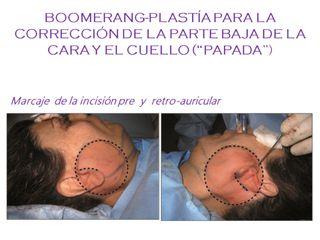 Boomerang-plastia