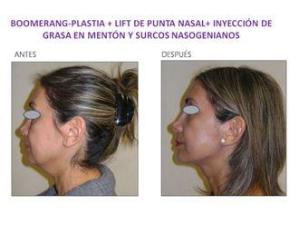 Cirugía facial-554121
