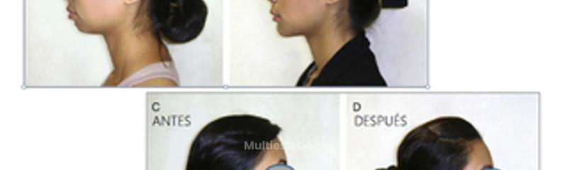 Injerto de Cartílago en la punta nasal